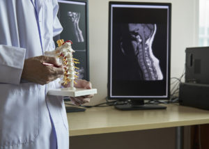Chiropractor Rochester MN holding spine model